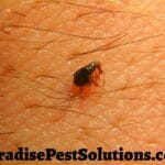 flea on human skin